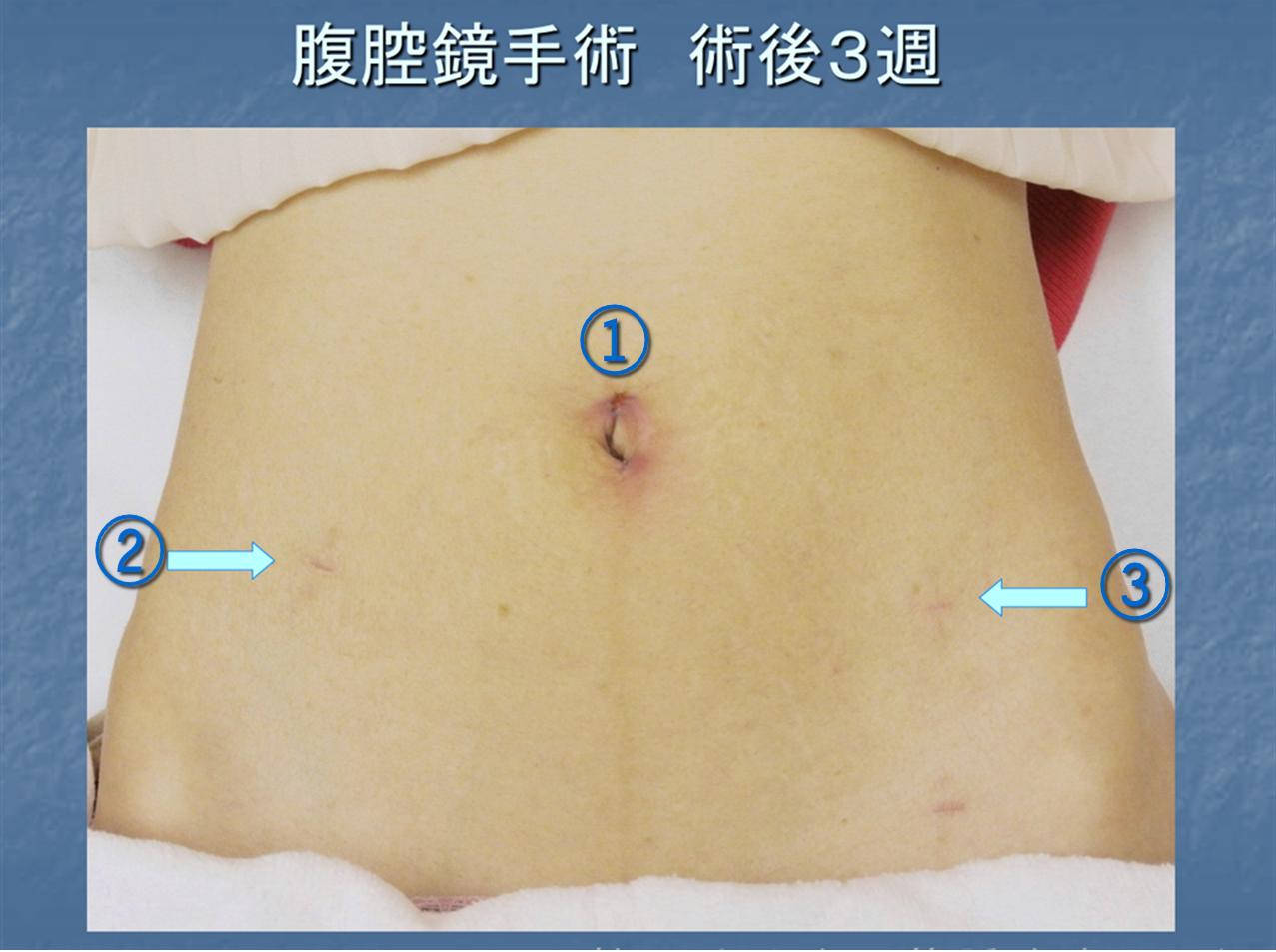 腹腔鏡手術 | 切らない筋腫治療...